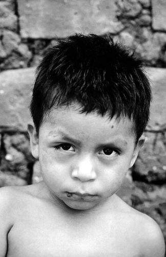 Chargas Befall Kind Mittelamerika Südamerika